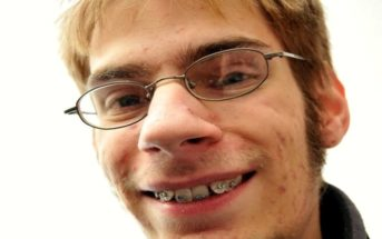 ugly nerdy man with braces
